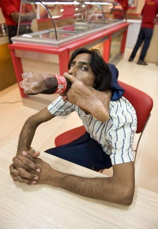 Резиновый человек Vijay Sharma
