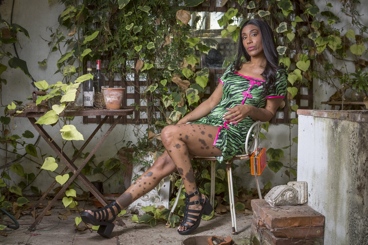 Девушка, которую называли далматинцем, стала моделью