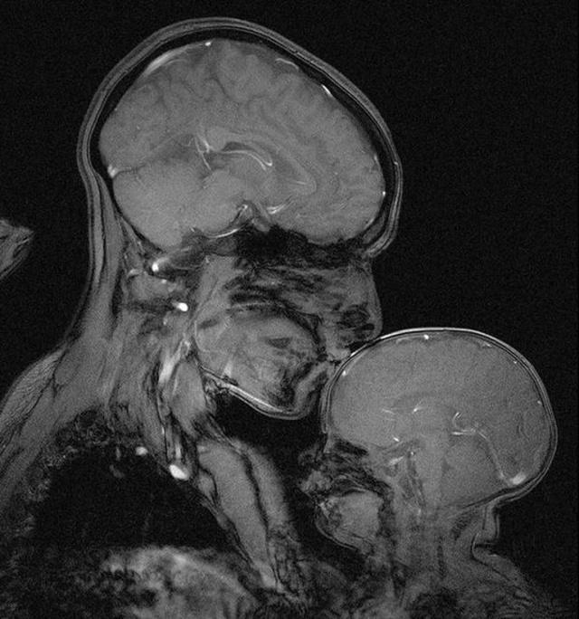 Взгляд на мир глазами рентгенолога