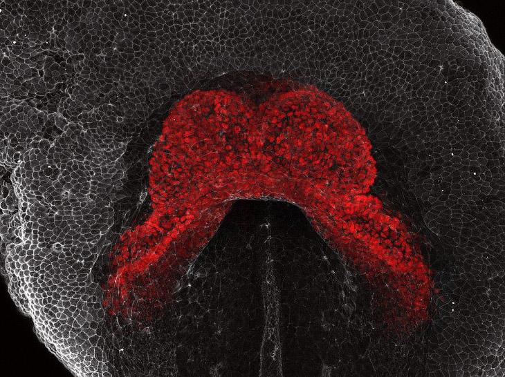 Макроснимки сердечно-сосудистой системы