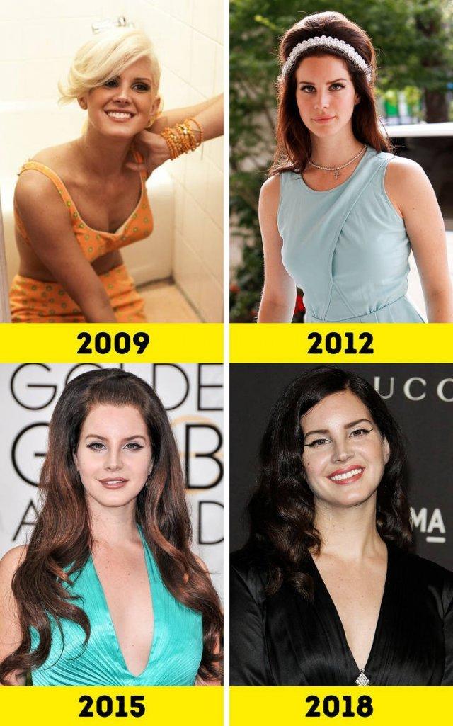 Как известные певицы менялись с годами