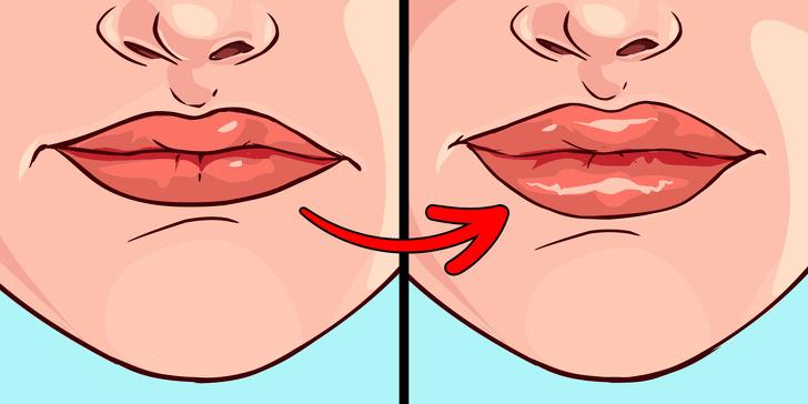 Что губы могут рассказать о проблемах со здоровьем