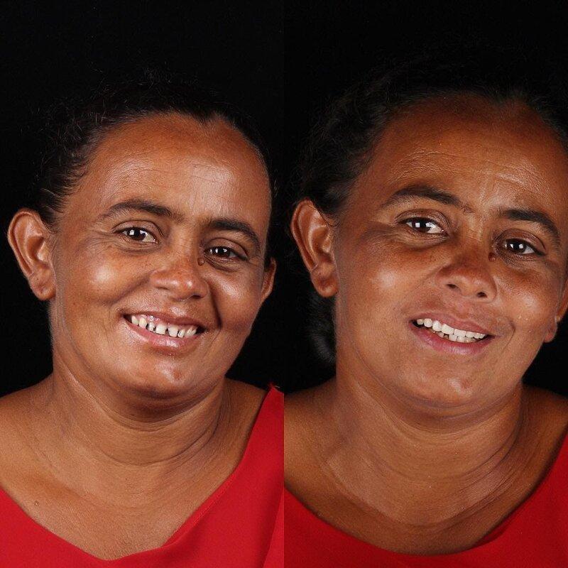 Стоматолог лечит зубы и меняет улыбки людей