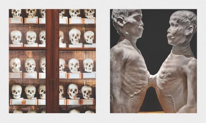 Уникальные музеи, которые слабонервным лучше не посещать