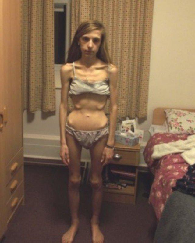 Эта девушка раньше весила 29 килограммов