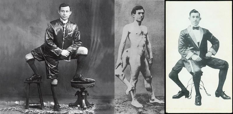 Известные цирковые артисты с физическими отклонениями из истории