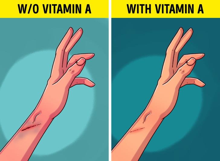 Некоторые признаки нехватки витамина А в организме