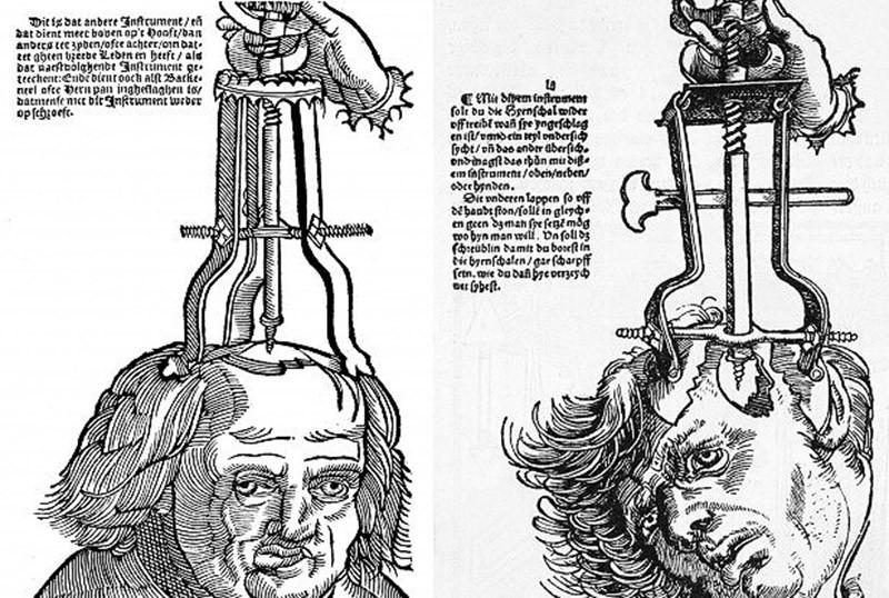 Странные и смешные медицинские процедуры прошлого