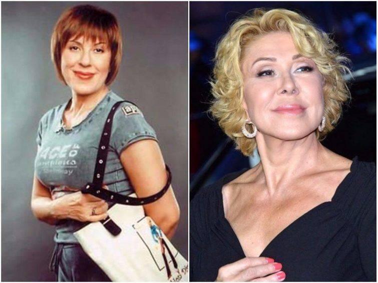 Российские знаменитости, которые зря сделали пластическую операцию