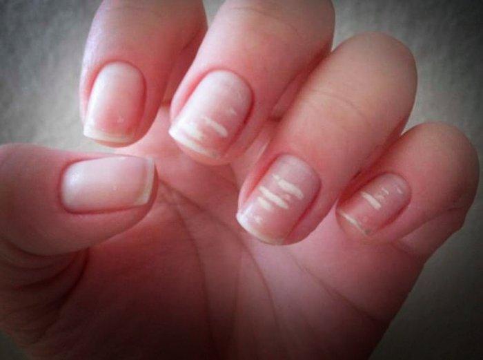 Из-за чего появляются белые пятнышки на ногтях? (ФОТО)