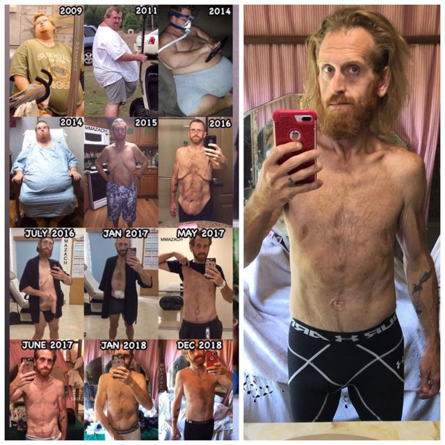 Зак Мур - толстяк, который сбросил 150 кг и начал новую жизнь