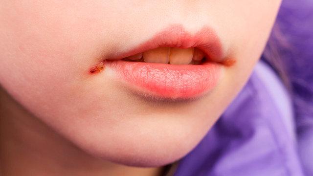 Неожиданные заболевания, которыми можно заразиться через поцелуй