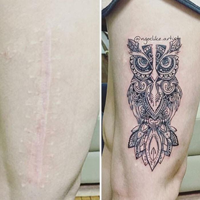 Татуировки, которые закрывают шрамы и другие дефекты на теле