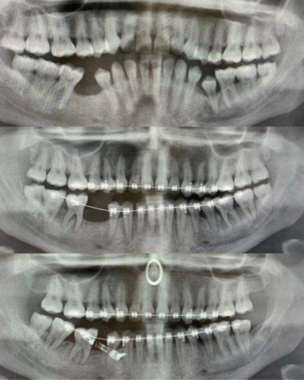 Немного занимательных рентгеновских снимков