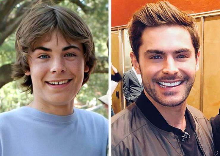 Снимки знаменитостей до того, как у них появилась голливудская улыбка