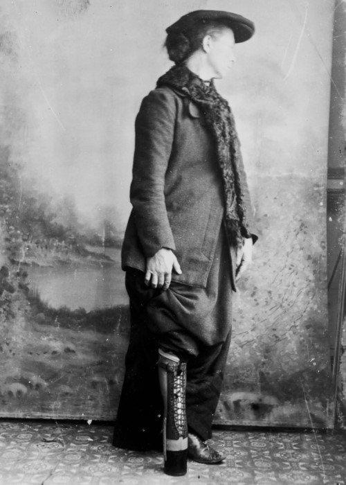Джеймс Джилингем - гениальный протезист XIX века