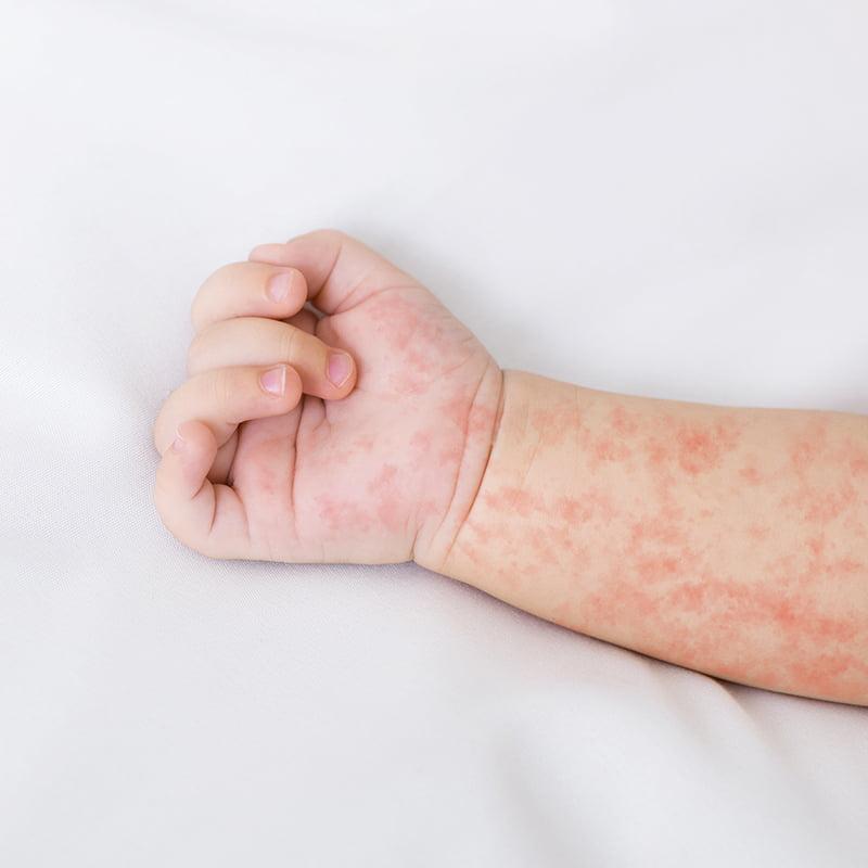Редкие заболевания, о которых вы никогда не слышали