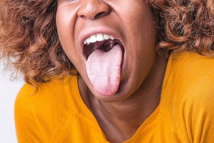 7 болезней, которые можно определить по запаху изо рта