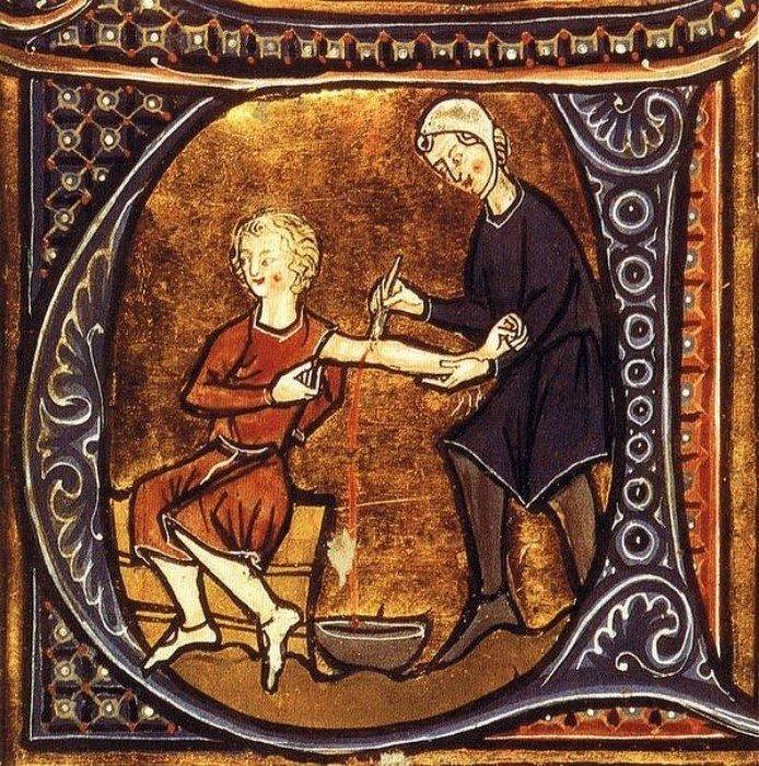 История кровопускания и его значение в медицине прошлого