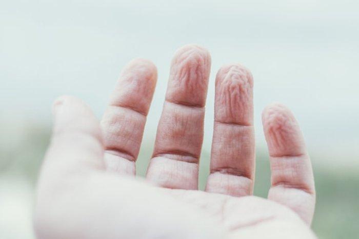 Почему от воды морщится кожа пальцев?