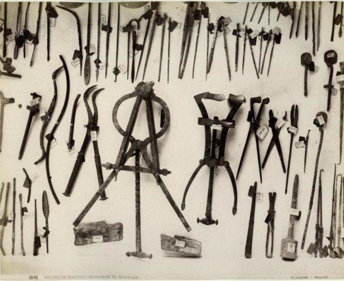 Антикварные медицинские инструменты, от одного вида которых становится плохо