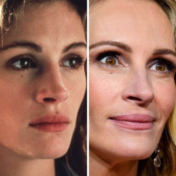 Лица знаменитостей крупным планом: как они изменились со временем