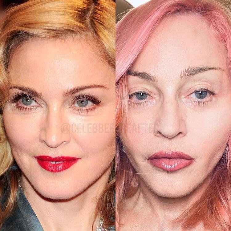 Лица знаменитостей на снимках тогда и сейчас с разницей в 10 и более лет