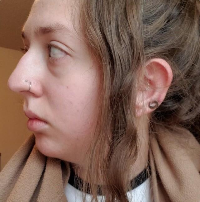 Снимки неидеальных, но уникальных женских носов