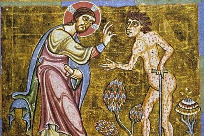 Почему прокаженных считали чудовищами и как победили страшную болезнь