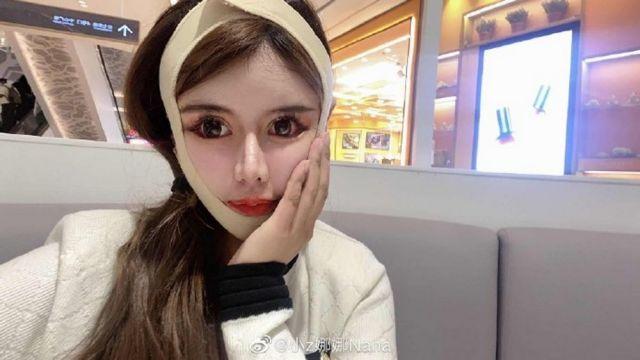 16-летняя Чжоу Чуна из Китая сделала 100 пластических операций