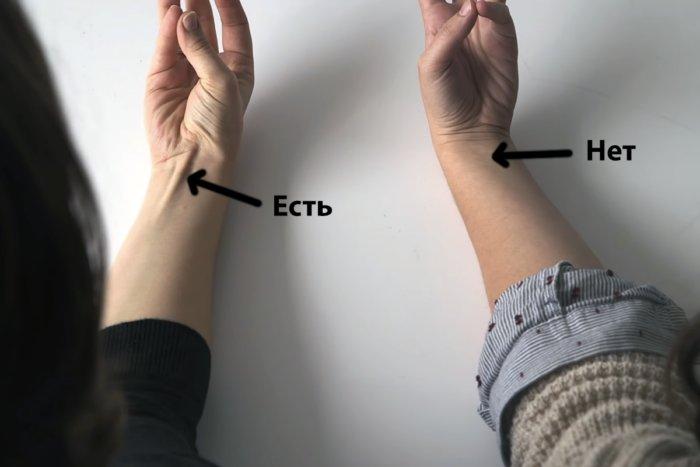 Доказательства эволюции прямо на нашем теле