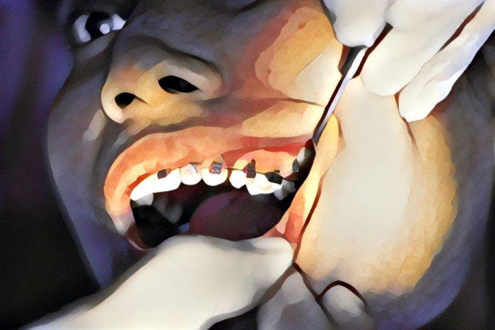 Почему у одних людей зубы кривые, а у других ровные?