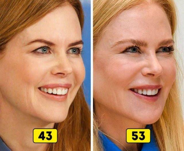 Как изменились лица знаменитостей за последние 10 лет