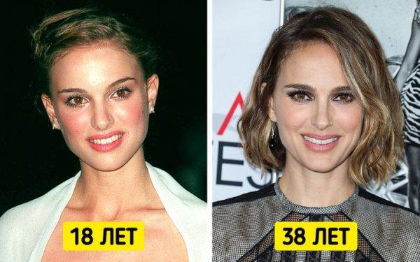 Знаменитые женщины, которые отказались от уколов красоты