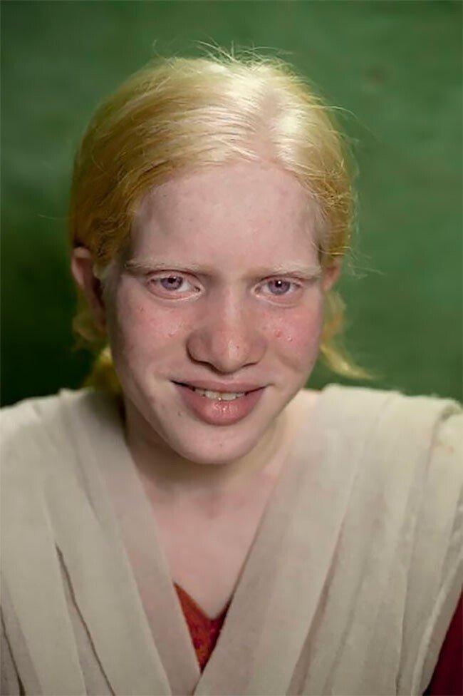 В Индии живет самая большая в мире семья альбиносов