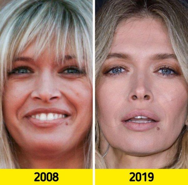 Как лица отечественных знаменитостей изменились с годами