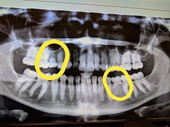 Разные странные и необычные рентгеновские снимки