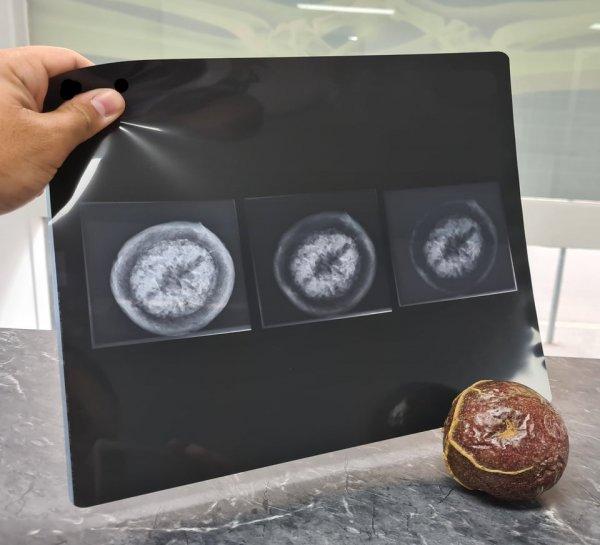 Удивительные и необычные рентгеновские снимки