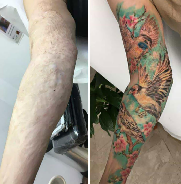 Кавер-ап татуировки, которые превратили изъяны кожи в произведения искусства